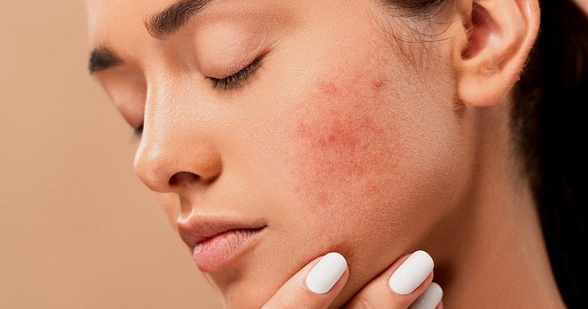 lutte contre l'acné